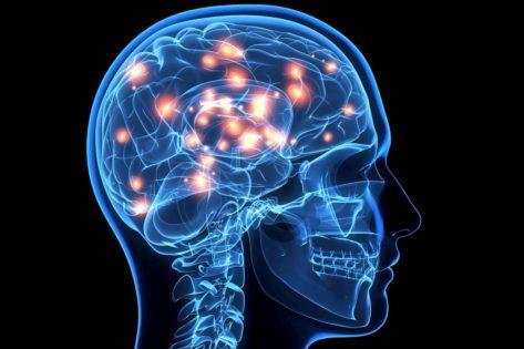 Дисциркуляторная энцефалопатия: что это такое и как лечить